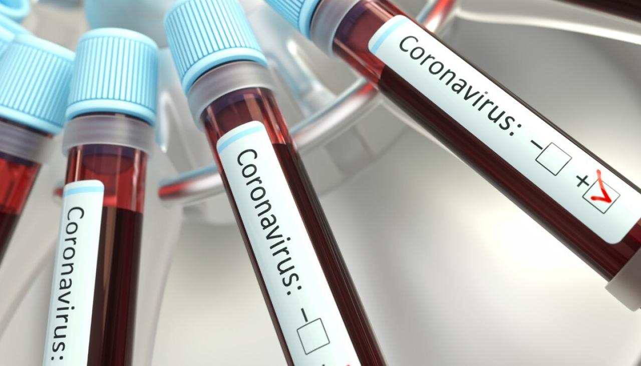 По состоянию на 10:00 15 сентября всего 2848 зарегистрированных и подтвержденных случаев инфекции COVID-19 на территории ДНР
