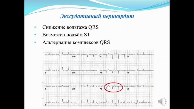 ЭКГ при различных заболеваниях и синдромах Артёмова Н М