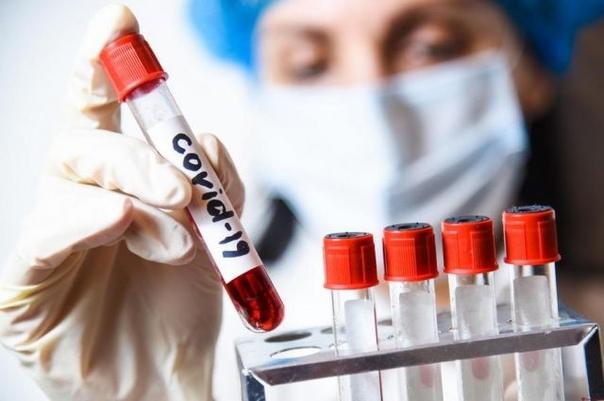 На Таймыре за выходные дни зафиксировано девять новых случаев заболевания COVID-19